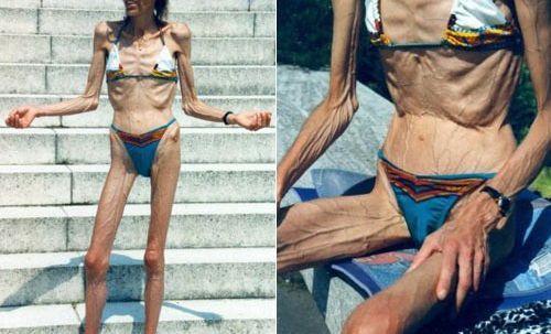 Болестта Анорексия | Ayurveda Bansko