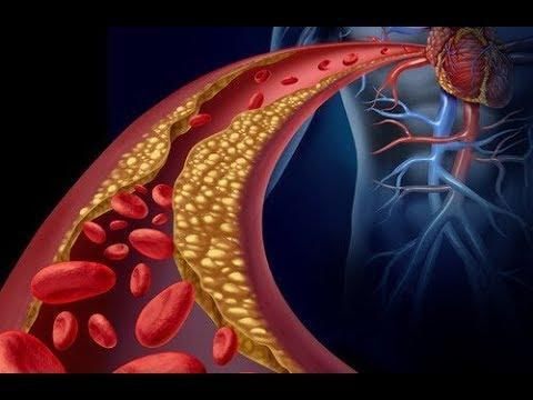 Lower triglycerides in the body