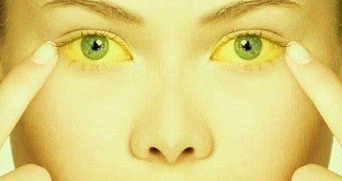 Ayurveda treatment for jaundice