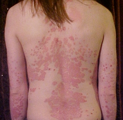 Does Ayurveda heal psoriasis?