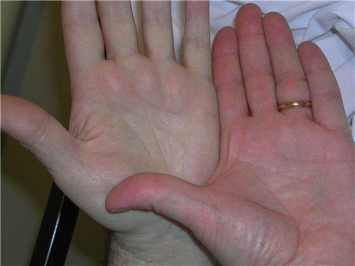 Причини за болестта Анемия