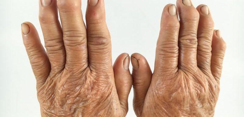 Ревматизъм и Ревматоиден артрит