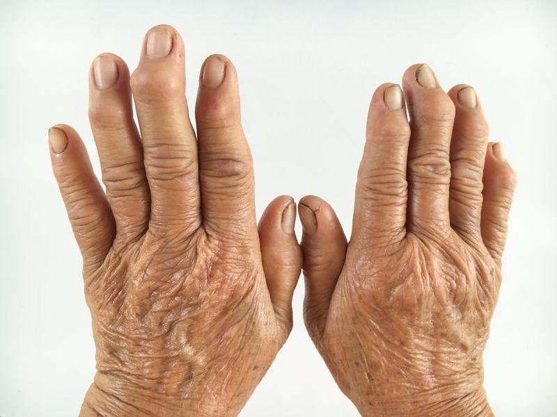 Rhumatisme et polyarthrite rhumatoïde