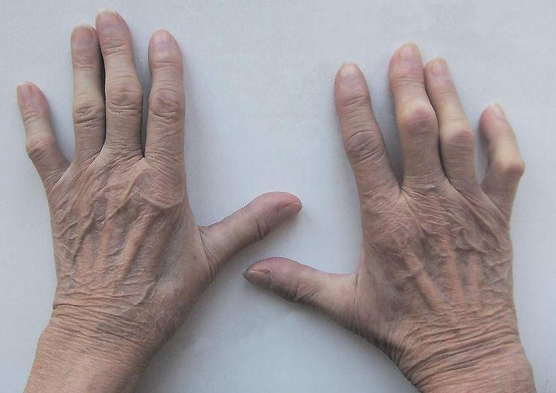 Ayurveda-Behandlung von rheumatoider Arthritis