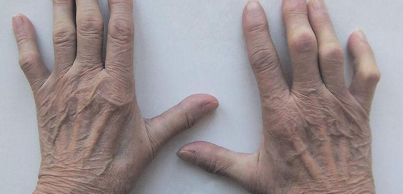 Аюрведа лечение на ревматоиден артрит