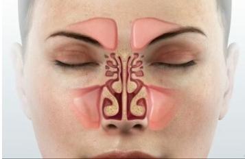 Behandlung von Sinusitis mit Ayurveda