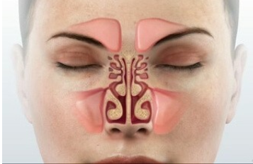 Treatment of sinusitis with Ayurveda