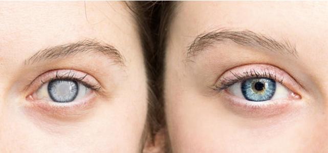 Wie es Ayurveda bei der Reduzierung des Sehvermögens hilft